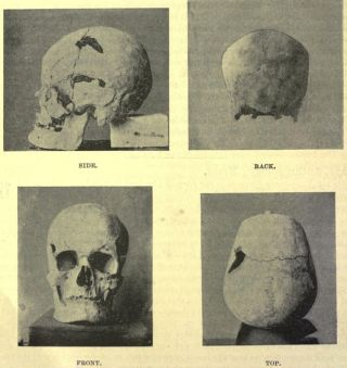 The possible skull of ancient Egyptian pharaoh Sanakht of the Third Dynasty.