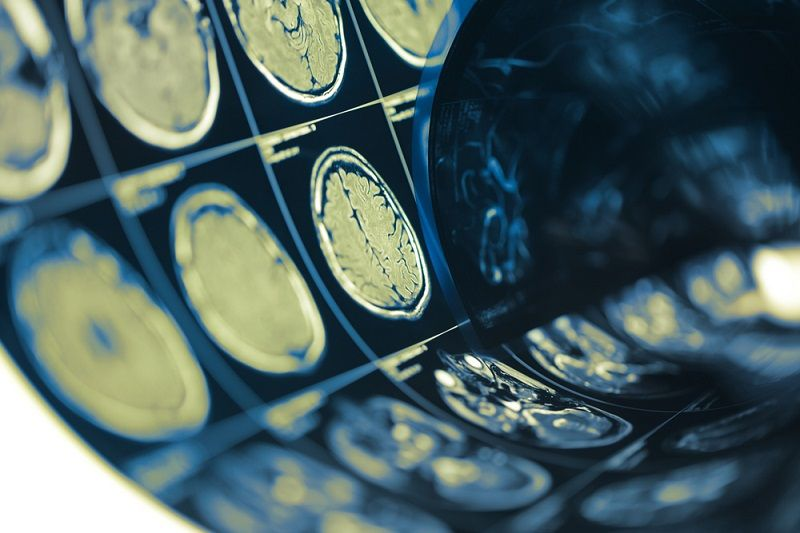 COVID-19 is tied to deadly brain inflammation in some patients - Live Science