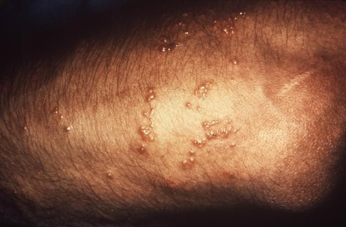 Poison Ivy: Rash, Treatment & Pictures | Live Science