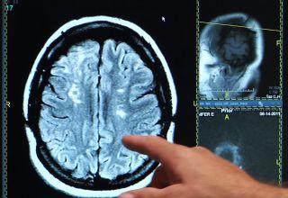 Stroke brain scan