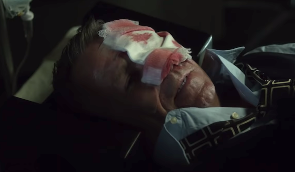 alfred injured in the face gotham