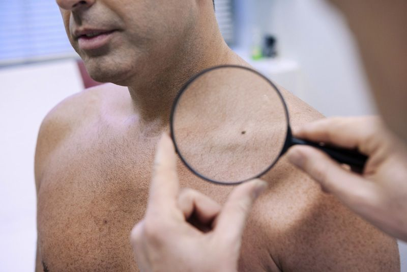 5 Ways Skin Can Signal Health Problems Live Science
