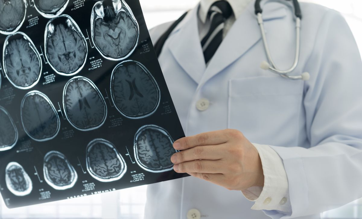 5-Inch-Long Tapeworm Lived in Man's Brain for More Than a Decade