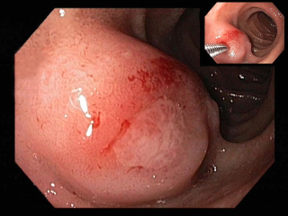 Lump in duodenum from bacterial infection