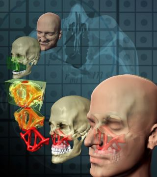 national science foundation, nsf, behind the scenes, bts, topological optimization, craniofacial injury, tissue engineering, surgery, reconstructive surgery