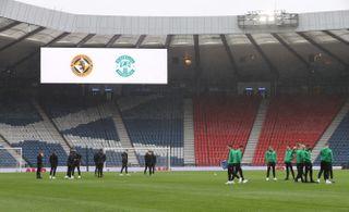 Dundee United v Hibernian – Scottish Cup – Semi Final – Hampden Park