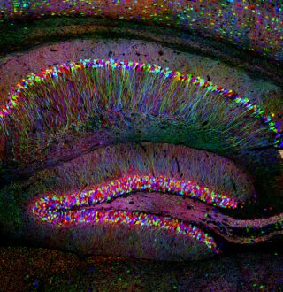 brain's hippocampus with fluorescent lighting agent