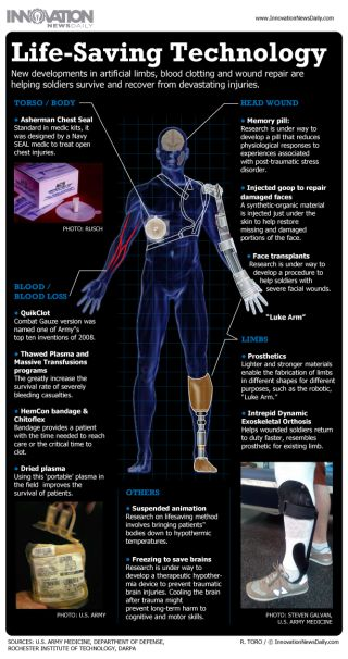 Infographic: How new prosthetics and medical techniques are saving soldiers' lives after the battlefield