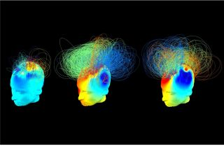These are brain networks in two vegetative patients (left and middle), alongside a healthy adult (right). The vegetative patients appeared behaviorally similar but one of them (middle) showed signs of hidden awareness during a previous fMRI study.
