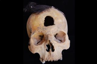 One of six trophy heads found in the 27 funerary pits. The dry climate in southern Peru allowed for the hair of the person to be preserved despite the passage of about 1,500 years.