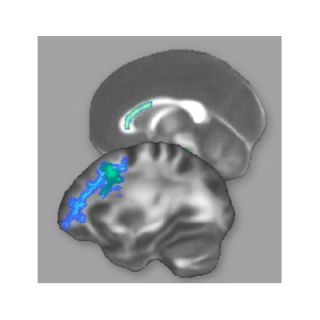 brain regions that changed after training for the lsat.