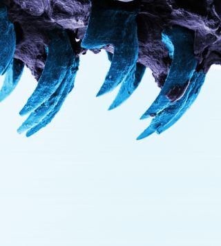 Limpet teeth