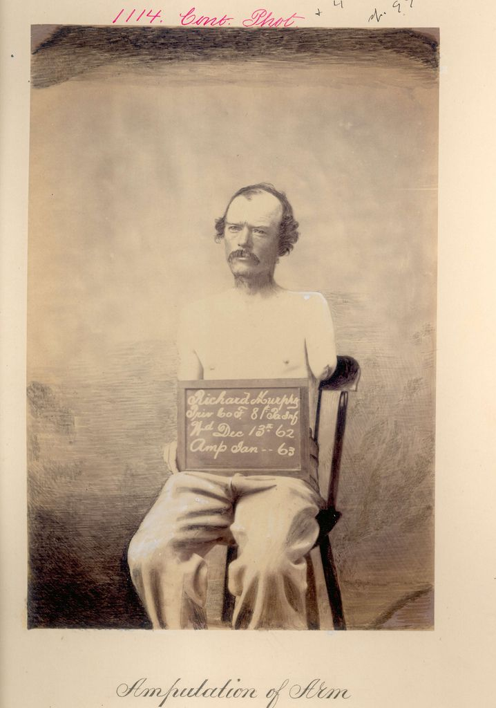 Album: Faces and Injuries of the Civil War | Live Science