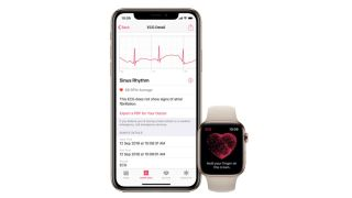 Study says Apple Watch can reduce risk of strokes, but healthcare professionals are skeptical