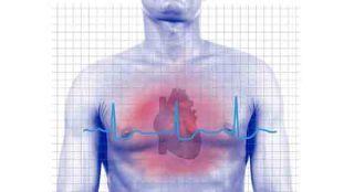 100830-heart-disease-02