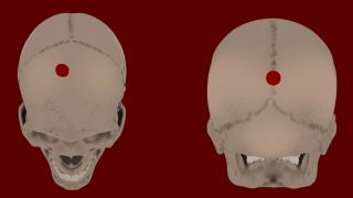 The computerized images of two skulls at different angles, with drilled holes marked at the top of one skull's image and at the front of the other skull's image.