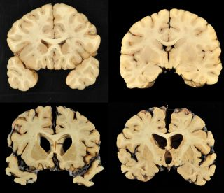 Images of the normal human brain and a brain with CTE.