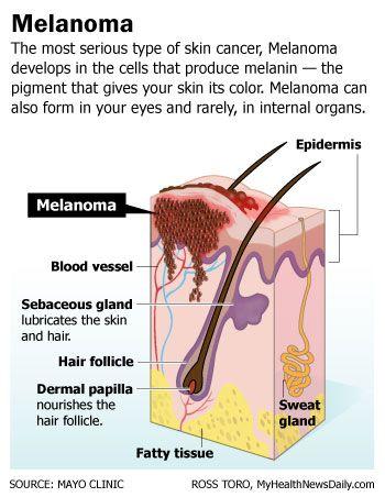 Melanoma: Symptoms, Treatment and Prevention | Live Science