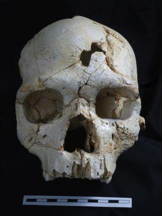 ancient skull of murder victim