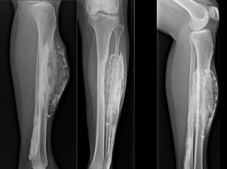 X-ray images show multiple views of patient's leg, revealing a calcified mass that developed following a snake bite.