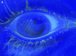 An image of the right eye.