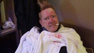 John Lydon after glass attack