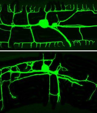 c elegans dendrites