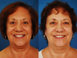 pre and post op plastic surgery photos