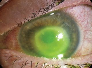 A woman in the United Kingdom was diagnosed with Acanthamoeba keratitis, a rare parasitic eye infection. She reported wearing contact lenses while swimming and showering, which is known to increase the risk of the condition. Above, an image of the woman's