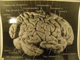 Einstein's Brain Reveals Clues to Genius | Live Science