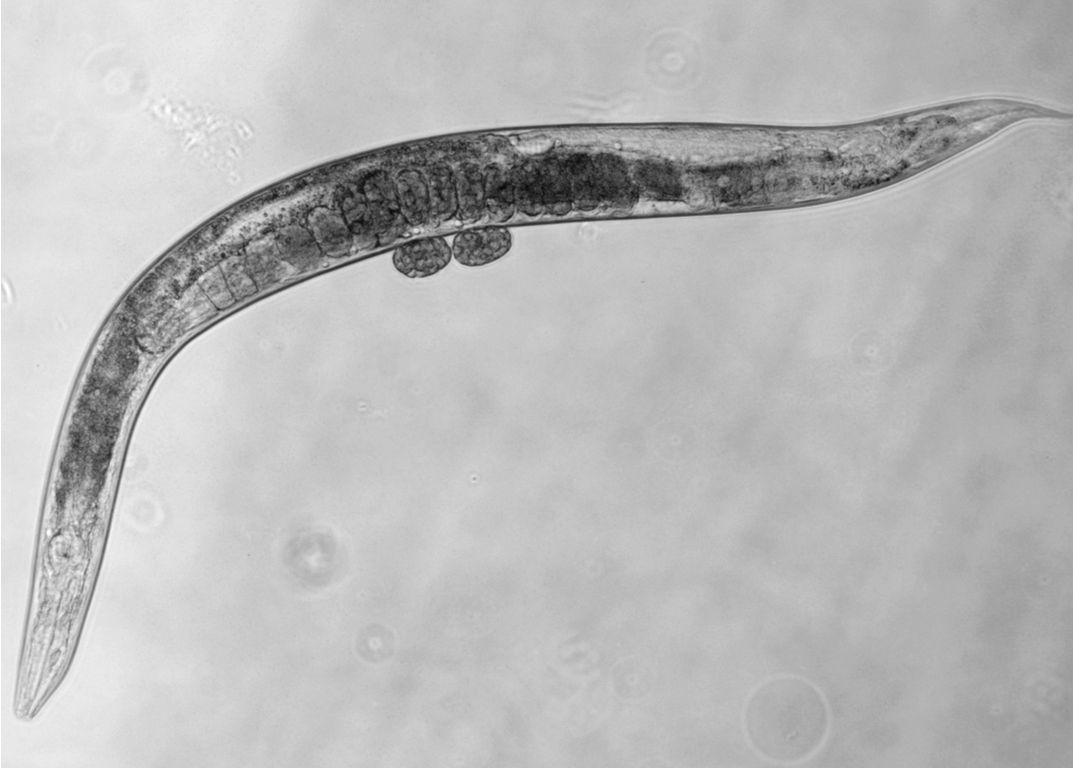Gene Tweak Can Extend Life 500% (But You Have to Be a Worm)