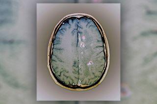 neurocysticercosis