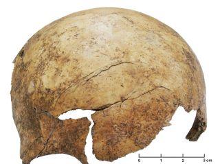 Neolithic skull injury