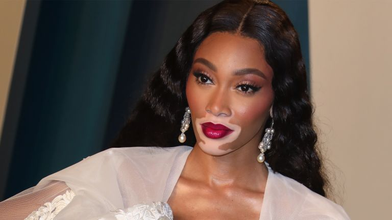 BEVERLY HILLS, CALIFORNIA - FEBRUARY 09: Winnie Harlow attends the 2020 Vanity Fair Oscar Party at Wallis Annenberg Center for the Performing Arts on February 09, 2020 in Beverly Hills, California. (Photo by Toni Anne Barson/WireImage)