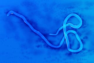 Microscopic view of Ebola virus