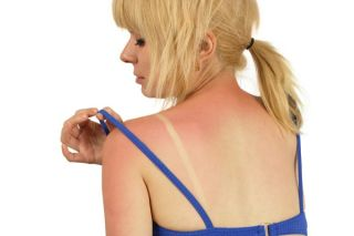 Sunburn: Causes, Symptoms & Treatment | Live Science