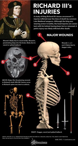 Chart shows dagger, sword and halberd wounds to the king's skeleton.
