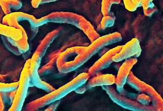 This digitally-colorized scanning electron micrograph (SEM) shows Ebola virus particles budding from the surface of a cell.
