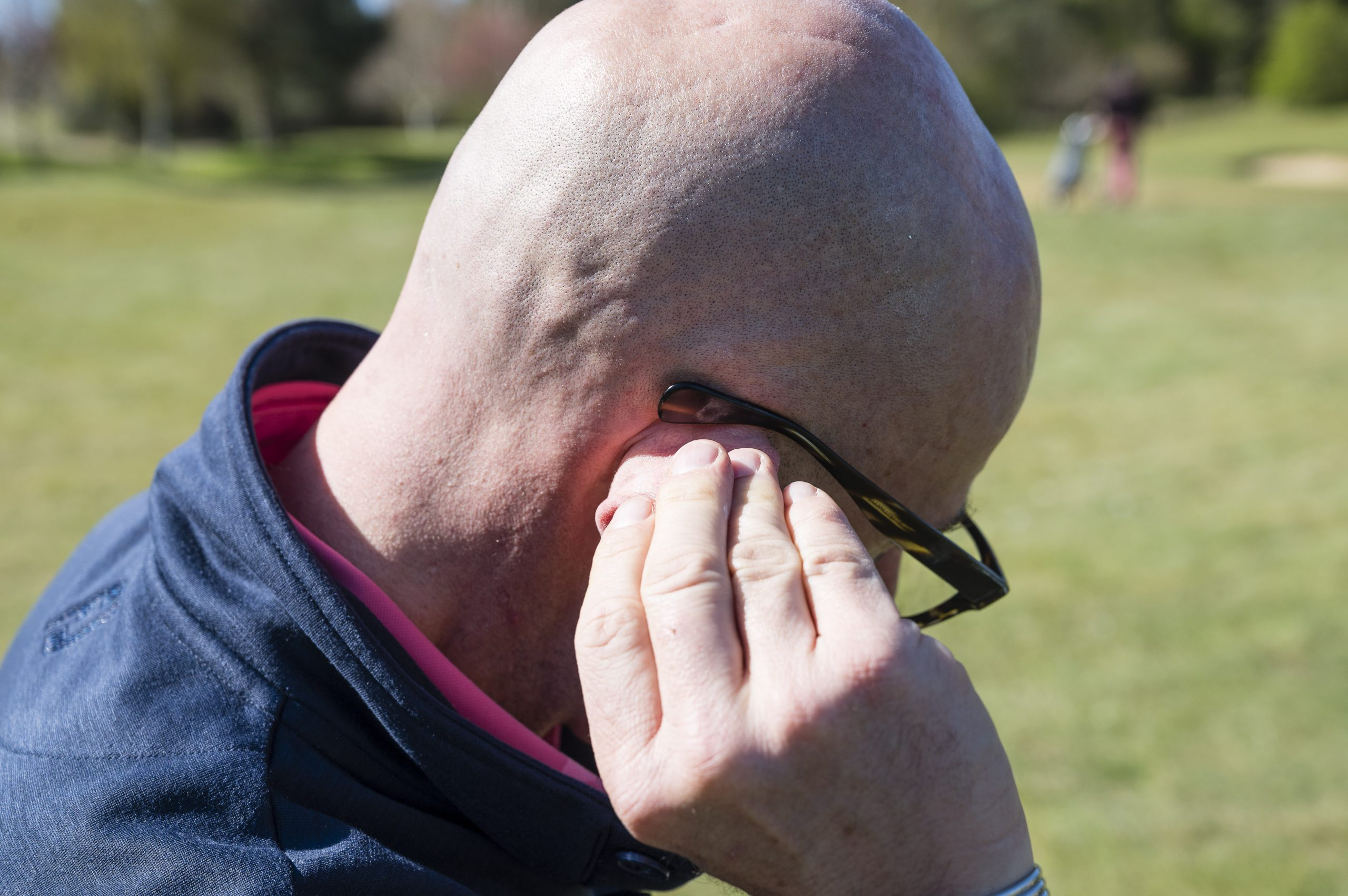 Why Golfers Need To Wear Sunscreen