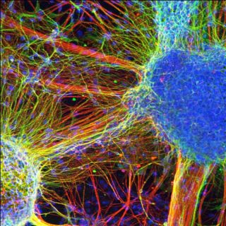 schizophrenia brain cells