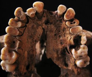 rotten teeth from paleolithic skeleton