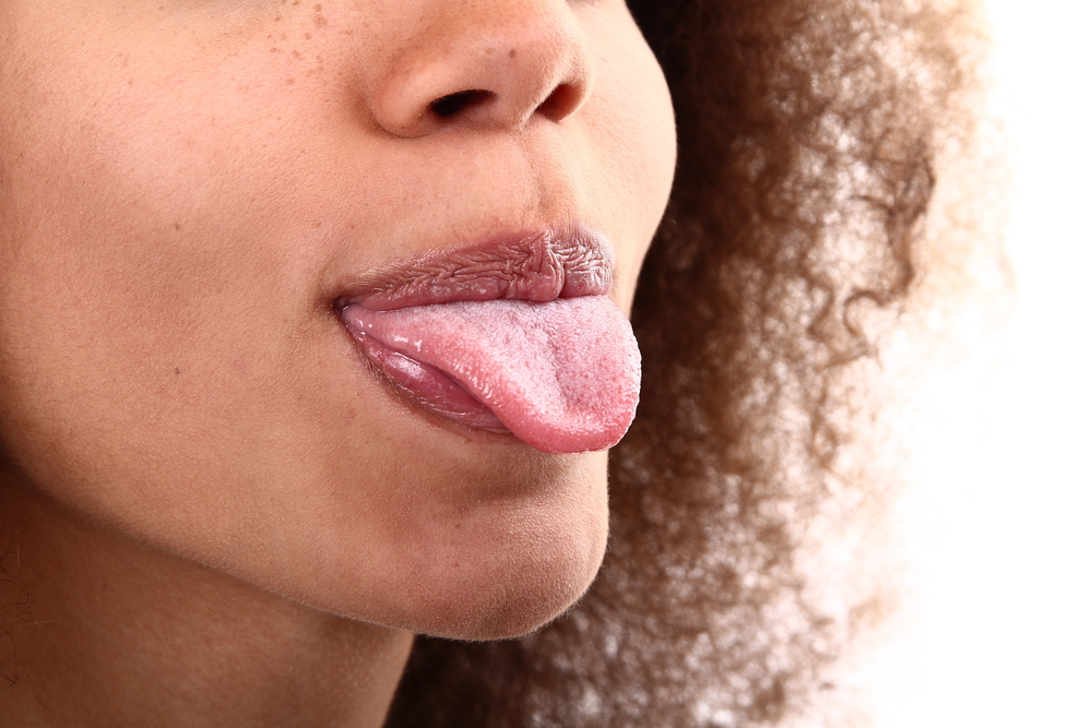 The Tongue: Facts, Function & Diseases | Live Science