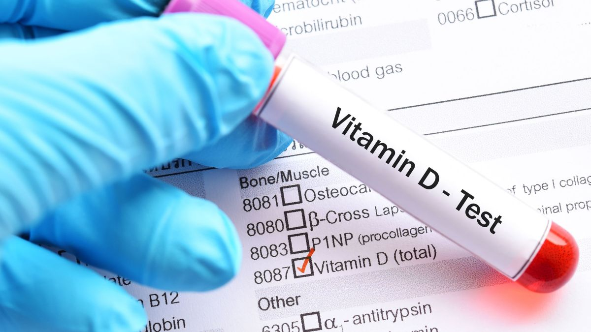 Covid-19 linked to vitamin D deficiency - here's how to up your intake