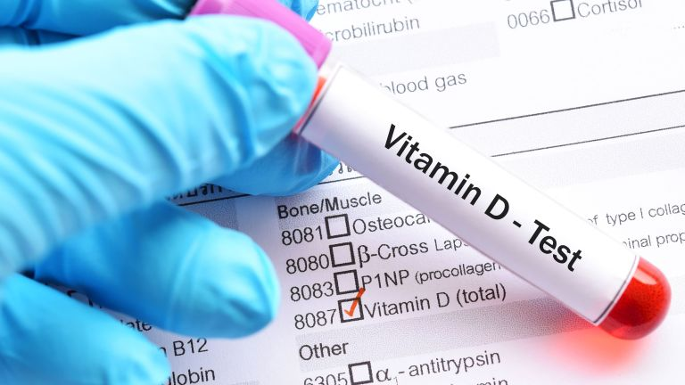 A new study links Vitamin D deficiency to Covid-19