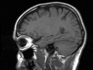 brain-hem-02
