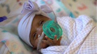 "A newborn in San Diego nicknamed baby ""Saybie"" is the the world's smallest surviving premature baby. Above, Saybie in March 2019, when she was around 3 months old and weighed 3 lbs."