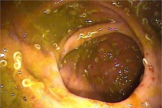 colitis-worms-101201-02