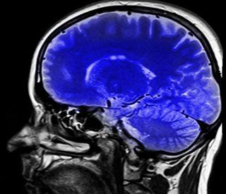 brain health, mental health disorders