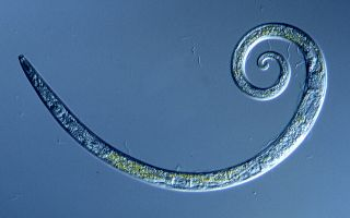 Worms Frozen for 42,000 Years in Siberian Permafrost Wriggle