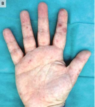 The woman developed a rash on her hands as well as her feet. (Image credit: The New England Journal of Medicine ©2019.)